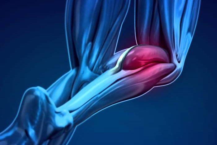 déchirure musculaire